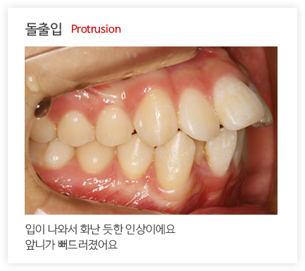 돌출입 Protrusion