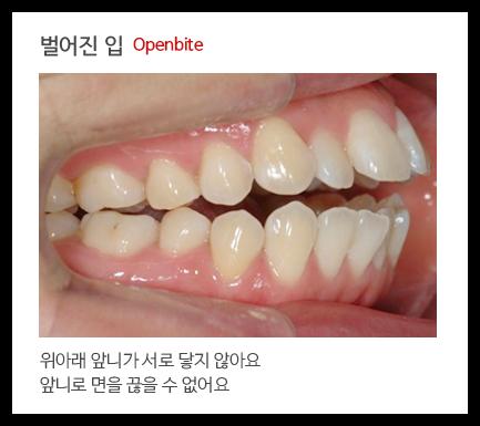 벌어진 입 Openbite