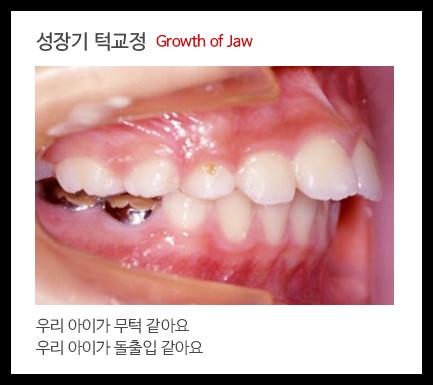 성장기 턱교정1 Growth of Jaw