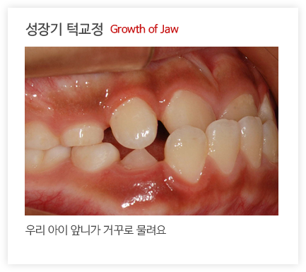 성장기 턱교정2 Growth of Jaw